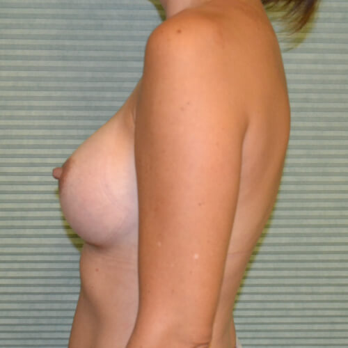 breast augmentation after side 325cc
