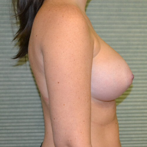 breast augmentation after side 375cc