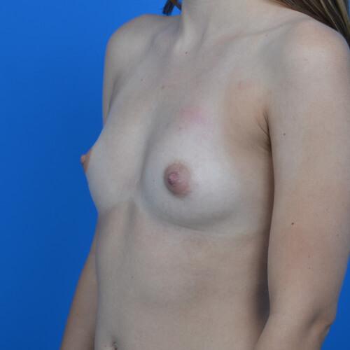 breast augmentation before L oblique 300cc