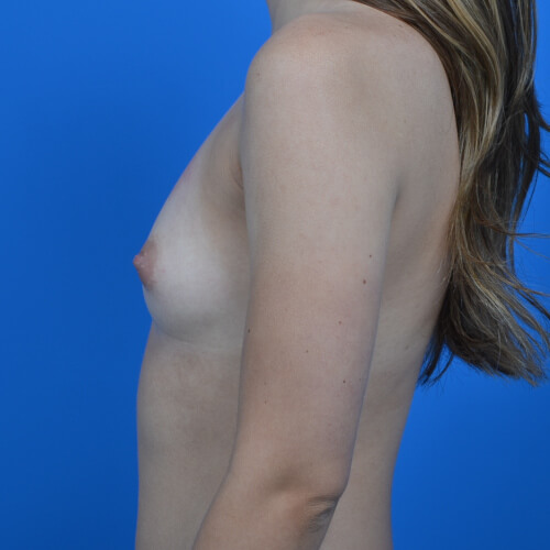 breast augmentation before L side 300cc