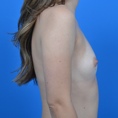 breast augmentation before R side 300cc
