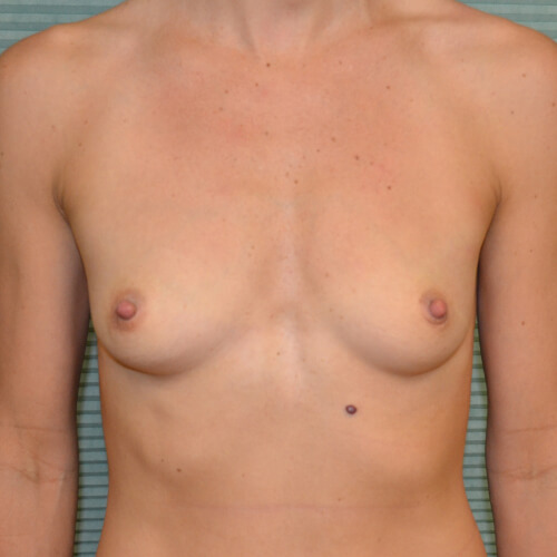 breast-augmentation-before-front-405cc