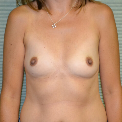 breast augmentation before front 325cc
