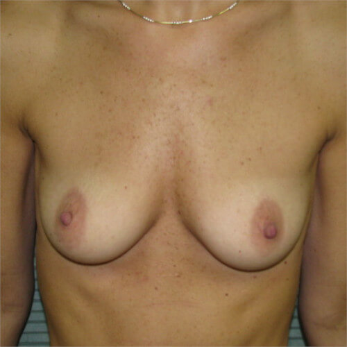breast-augmentation-before-front-saline-475cc