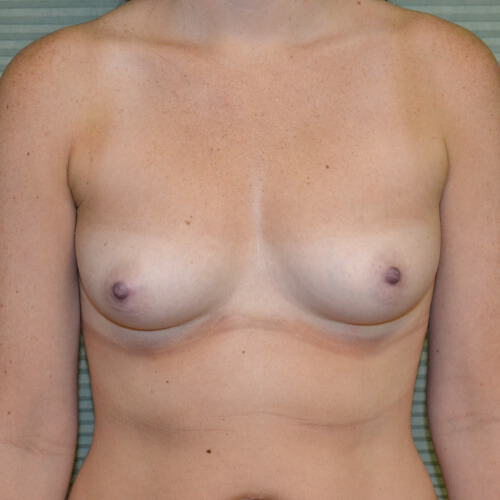 breast augmentation before front 375cc