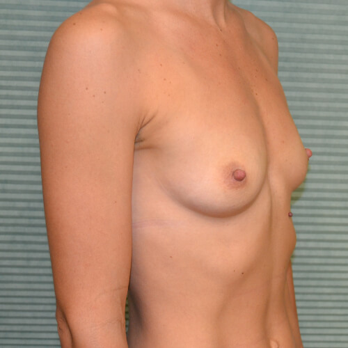 breast-augmentation-before-oblique-405cc