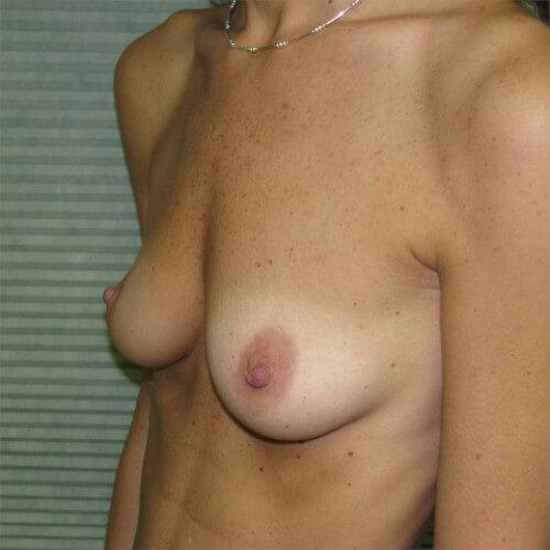 breast-augmentation-before-oblique-saline-475cc