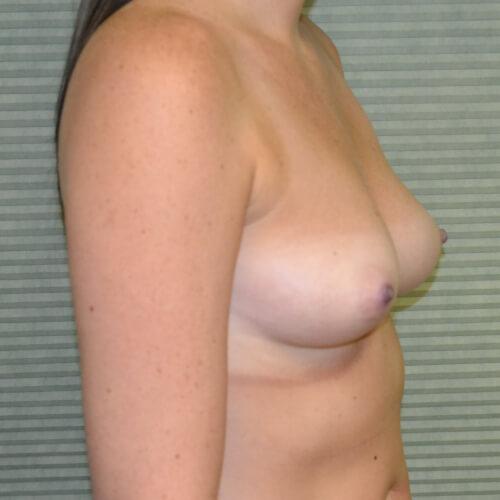 breast augmentation before oblique 375cc