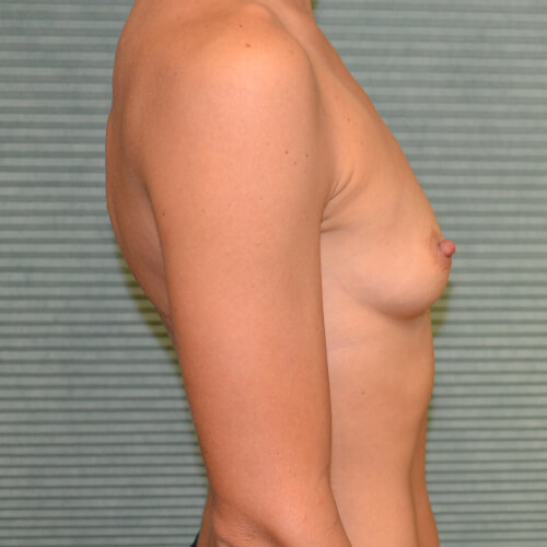 breast-augmentation-before-side-405cc