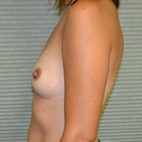 breast augmentation before side 325cc
