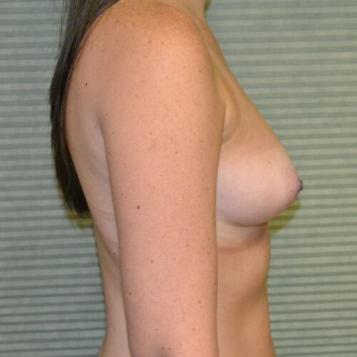 breast augmentation before side 375cc