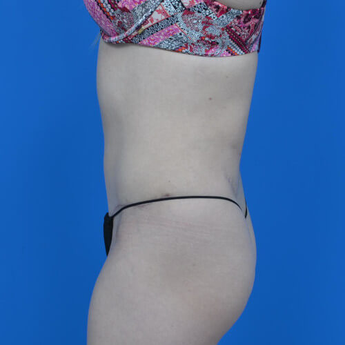 mini tummy tuck and liposuction abdomen and flanks L side after