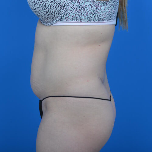 mini tummy tuck and liposuction abdomen and flanks L side before