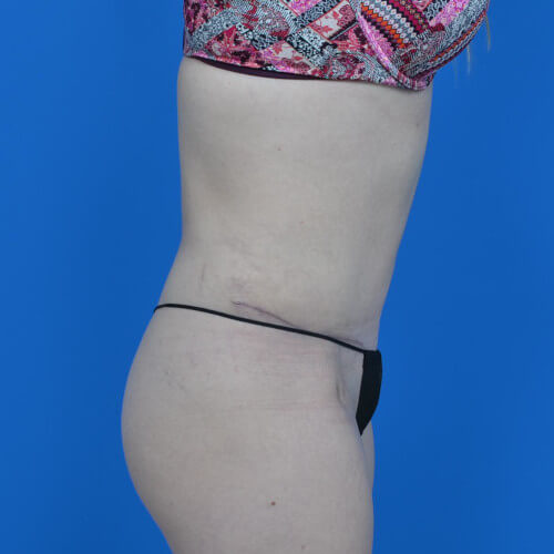 mini tummy tuck and liposuction abdomen and flanks R side after