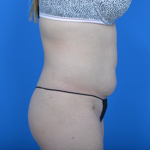 mini tummy tuck and liposuction abdomen and flanks R side before