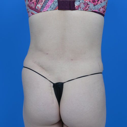 mini tummy tuck and liposuction abdomen and flanks back after