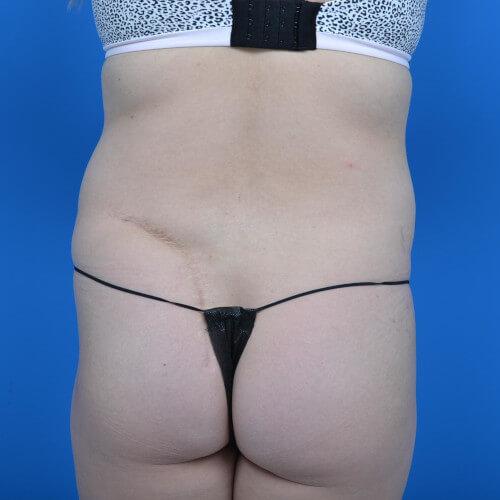 mini tummy tuck and liposuction abdomen and flanks back before