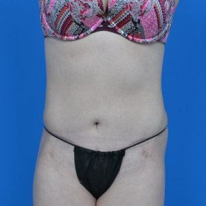 mini tummy tuck and liposuction abdomen and flanks after