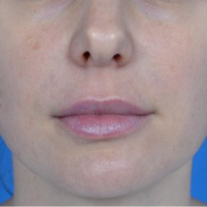 lip augmentation juvederm after front