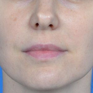 lip augmentation juvederm ultra before front