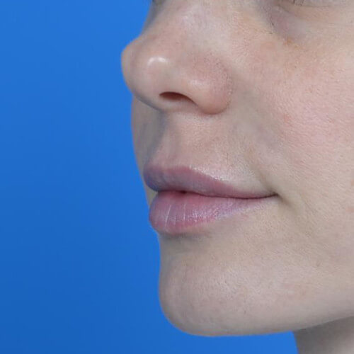 lip augmentation juvederm after oblique