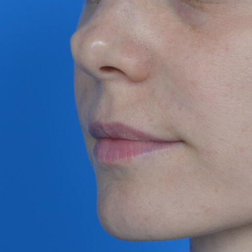lip augmentation juvederm before oblique